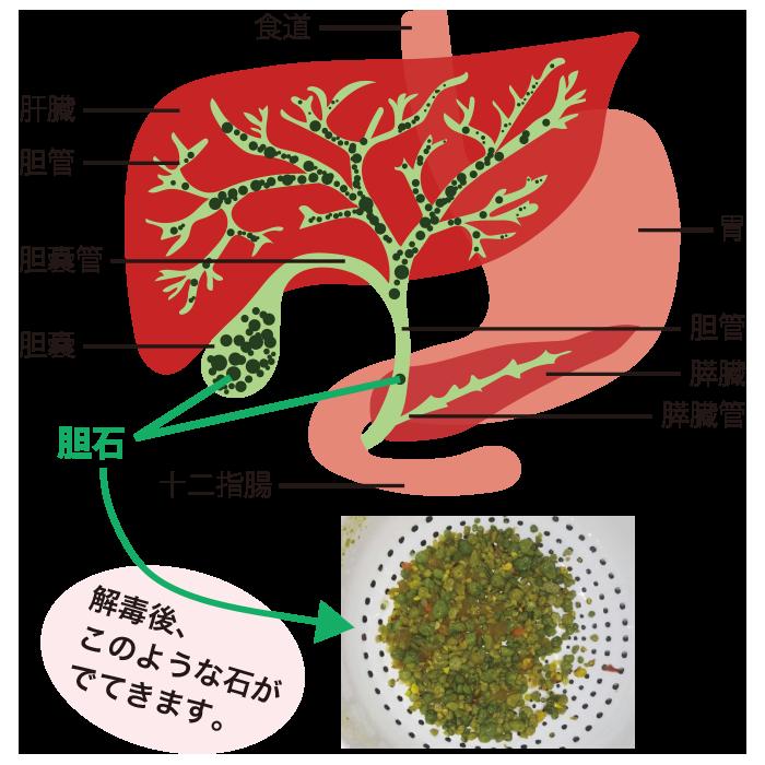 肝臓の石についてです。CTスキャンで、肝臓に、小 …